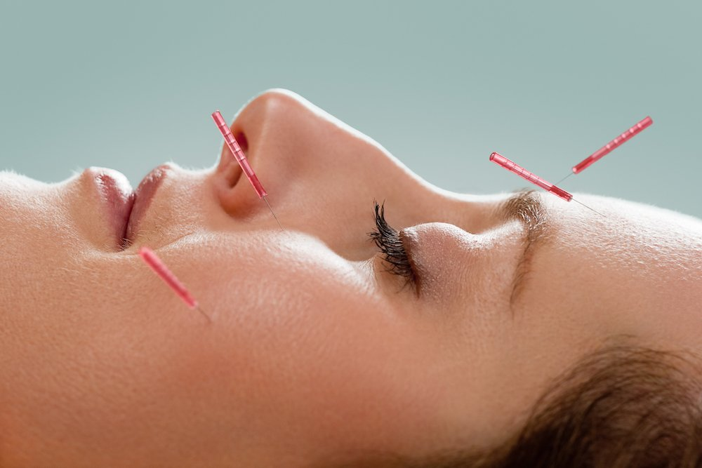 Facial acupuncture mary ann weeks aveda guildford surrey
